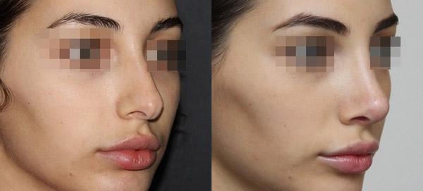 ринопластика носа с раздвоенным кончиком, вид в 3/4, хирург Григорянц В.С.