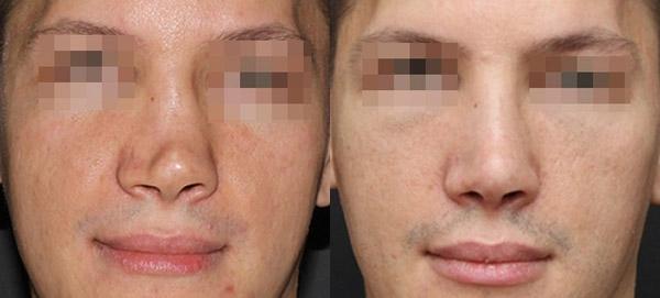 Восстановление носа после перелома, вид спереди, хирург Григорянц В.С.