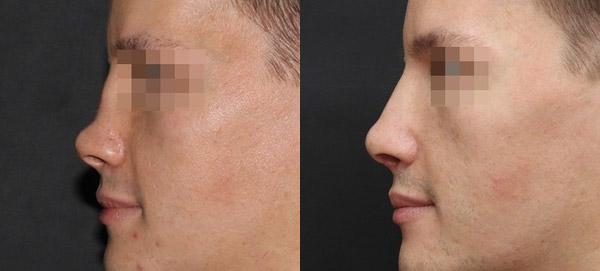 Восстановление носа после перелома, вид сбоку, хирург Григорянц В.С.