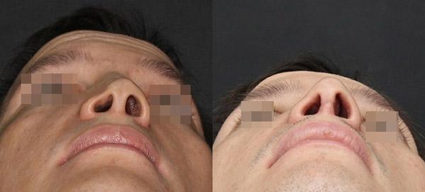 Восстановление носа после перелома, вид снизу, хирург Григорянц В.С.