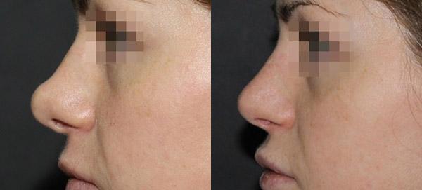 Нос до и после повторной пластики, хирург В.С. Григорянц