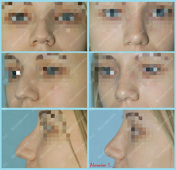 Ринопластика - фото до и после операции, хирург Абрамян С.М.