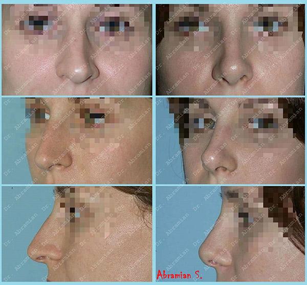 Ринопластика с поднятием кончика носа, хирург – Абрамян С.М.