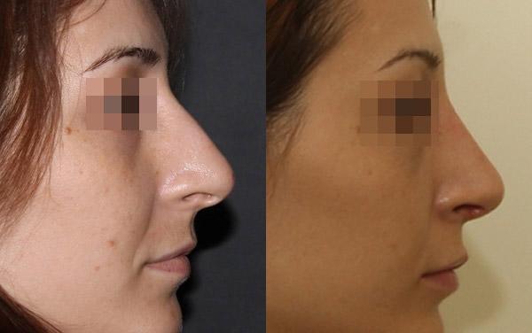 удаление горбинки носа, вид сбоку, доктор Григорянц В.С.