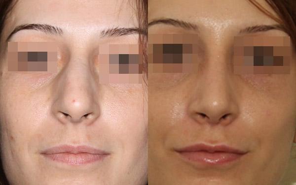удаление горбинки носа, вид спереди, доктор Григорянц В.С.