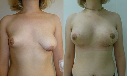 фото до и после увеличения груди имплантами разного размера, хирург Сергеев И.В.