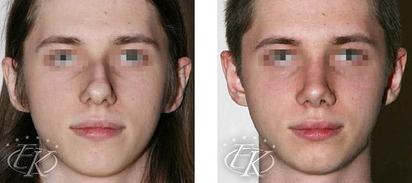 Пластика большого носа с горбинкой, хирург Кудинова Е.С., вид спереди