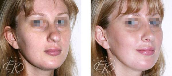 Пластика носа и подбородка, хирург Кудинова Е.С., вид спереди