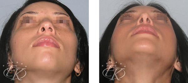 Ринопластика с увеличением подбородка, хирург Кудинова Е.С., вид снизу