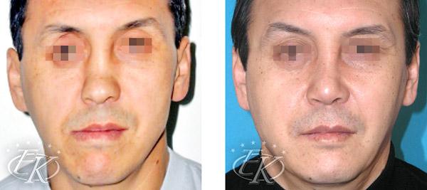 Пластика носа и уменьшение подбородка