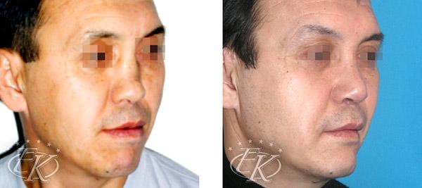 ринопластика и ментопластика, хирург Кудинова Е.С.