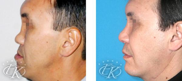 одномоментная коррекция носа и подбородка