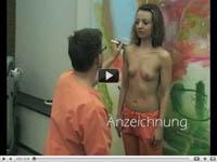 Увеличение груди гиалуроновой кислотой: видео