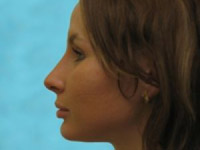 Ринопластика: фото до и после операции