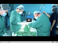 Ринопластика: видео