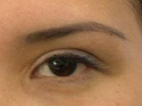 Блефаропластика азиатских глаз: фото до и после