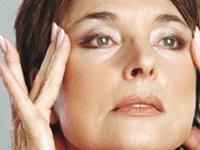 Подтяжка лица: фото до и после