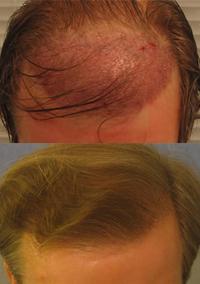 Фирмы масок для волос после кератинового выпрямления