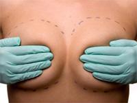 Подтяжка груди: фото до и после