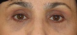 Фото после блефаропластики, хирург Абдулмаджидова А.С.