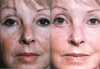 Фото до и после инъекций фибробластов