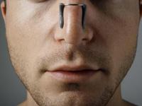 Септопластика – коррекция носовой перегородки
