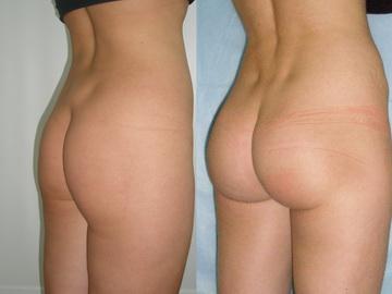 Увеличение ягодиц фото до и после