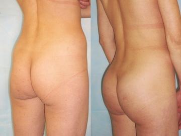 Глютеопластика фото до и после