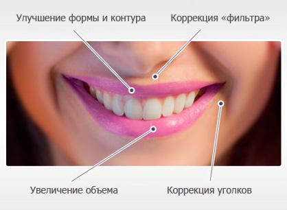 Ювидерм Ультра Смайл (Juviderm Ultra Smile)