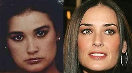 Деми Мур – фото до и после пластики носа