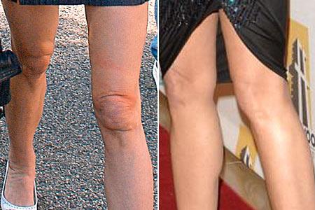Деми Мур – фото до и после пластических операций