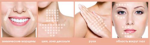 Ключевые области применения препаратов Plinest