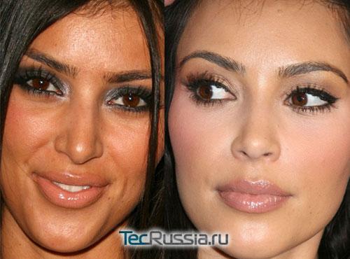 Ким Кардашян – фото до и после пластических операций