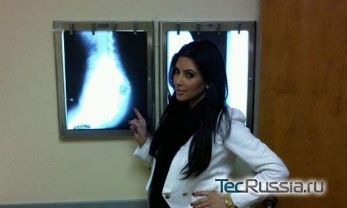 Ким Кардашян и рентгеновский снимок ее ягодиц