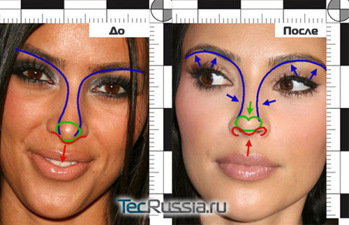 До и после пластической операции: