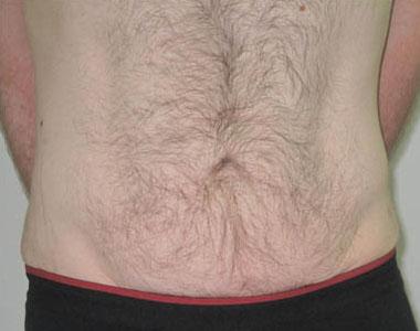 Аппарат Reaction: укрепление кожи и моделирование контуров тела