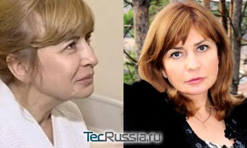 Ирина Агибалова из Дома-2 – фото до и после пластических операций