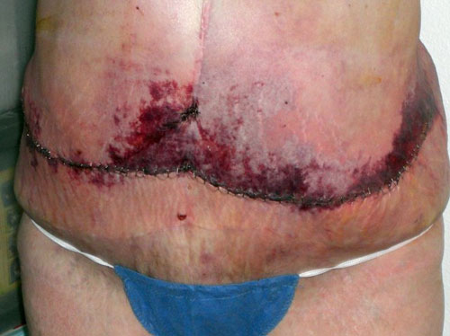 Осложнения после абдоминопластики