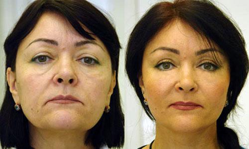 Подтяжка лица фото до и после
