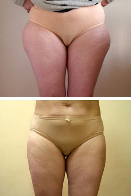 Липосакция фото до и после
