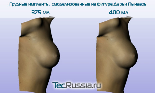 увеличение груди дарьи пынзарь