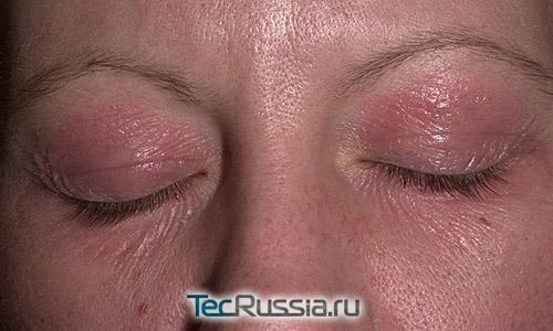 аллергия на духи фото