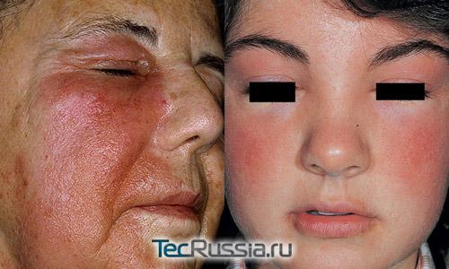 Аллергия на тональный крем