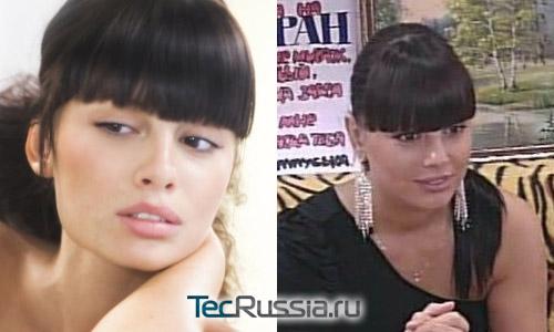 Нелли Ермолаева из Дома-2 – фото до и после пластических операций