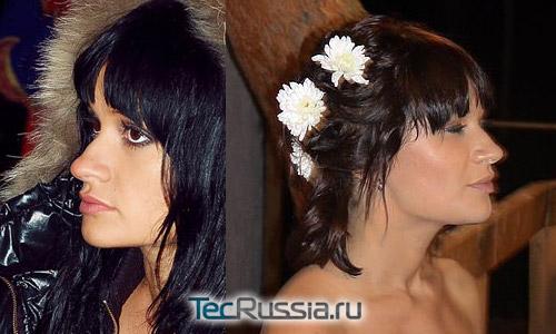 Елена Бушина из Дома-2 – фото до и после пластических операций