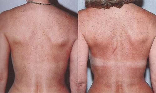 Фото до и после реконструкции молочной железы торакодорсальным лоскутом