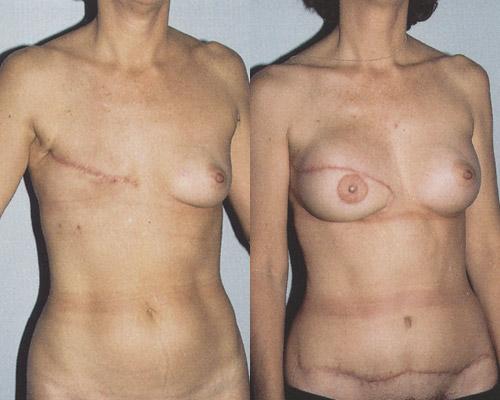Фото до и после реконструкции молочной железы ректоабдоминальным лоскутом