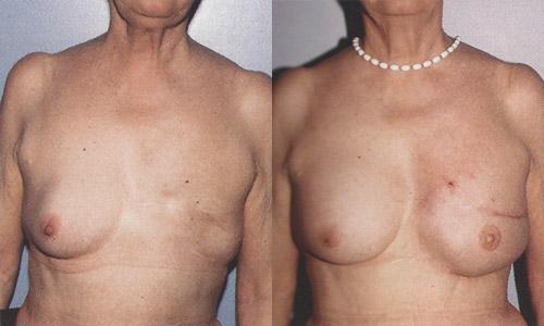 Фото до и после реконструкции молочной железы с использованием тканевых экспандеров