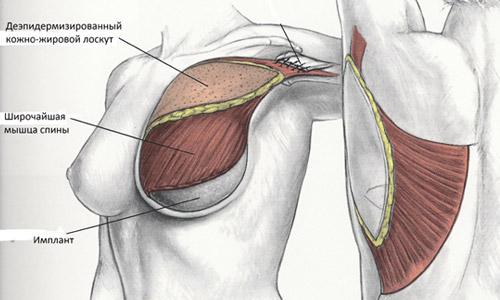 Реконструкция молочной железы торакодорсальным лоскутом