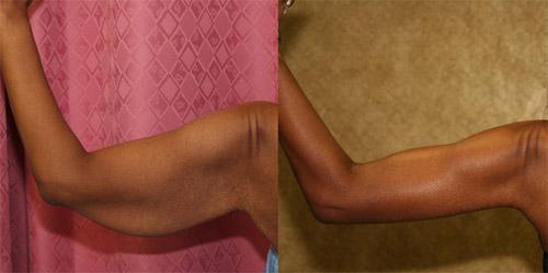 Подтяжка кожи после похудения в домашних